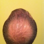 LaserCap for thinning hair Blue Haven Medical Spa Seattle