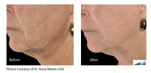 Seattle Infini Skin Tightening Laser Services | Blue Haven
